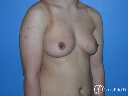 Denver FTM Female to male top surgery 5105 - Before Image 2