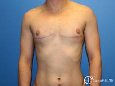 Denver FTM Female to male top surgery 6608 - After Image