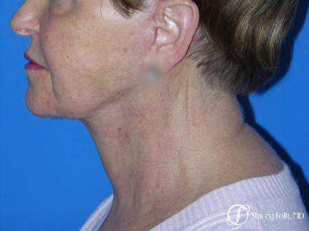 Denver Facial Rejuvenation Face Lift and Fat Injections 7130 -  After Image 1