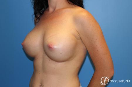 Denver Breast Augmentation using Sientra Breast Implants 7135 -  After Image 2