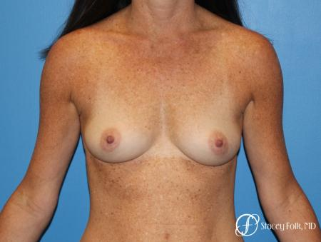 Denver Breast Augmentation using Sientra Silicone Gel Breast Implants 9362 - Before Image 1