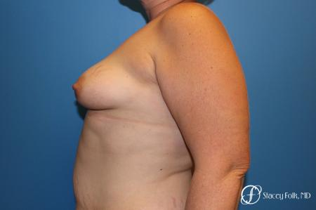 Denver Breast Augmentation Mastopexy 8507 - Before Image 4