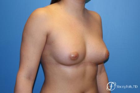 Fat Transfer Breast Augmentation -  After Image 2