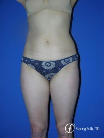 Denver Liposuction 961 - After Image