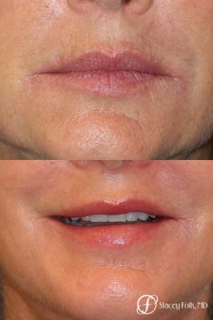 Denver Laser Skin Resurfacing Face 9390 - Before Image 1