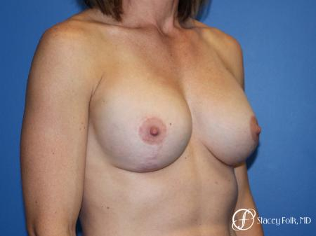 Denver Breast augmentation and breast lift (Mastopexy) 10091 -  After Image 2
