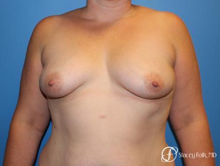 Denver Breast Augmentation Mastopexy 8507 - Before Image 1