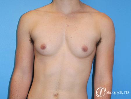 Denver FTM female to male top surgery using gynecomastia technique 5128 - Before Image