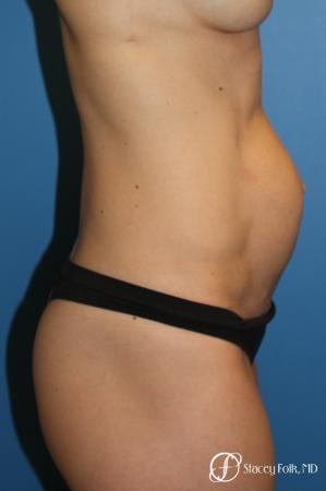 Denver Tummy Tuck (Abdominoplasty) 11239 - Before and After Image 5