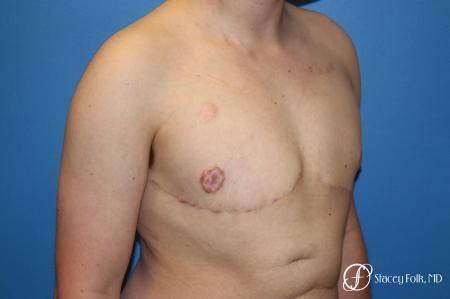 Denver Female to Male Top Surgery 5257 -  After Image 2