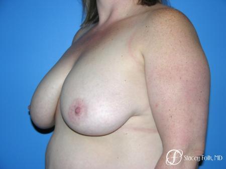 Denver Breast Reduction 4799 - Before Image 2