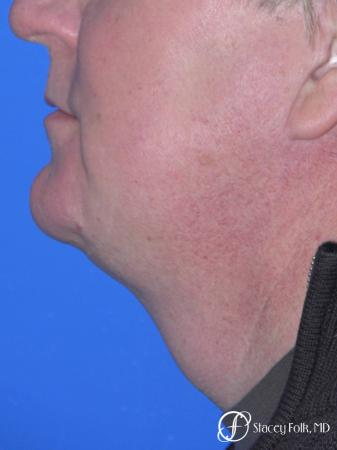 Denver Facial Rejuvenation Face lift, and Fat injections 7157 -  After Image 1
