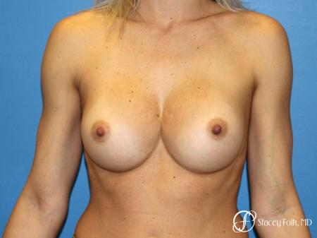Denver Breast Augmentation 8202 - After Image