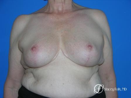 Denver Breast Reduction 37 -  After Image 1