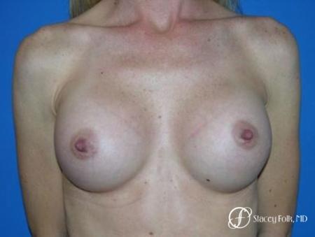 Denver Breast Augmentation 8 -  After Image 1