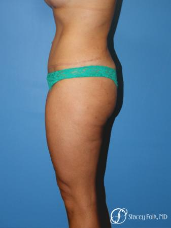 Denver Tummy Tuck Abdominoplasty 5368 -  After Image 3