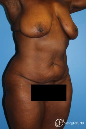 Denver Breast Lift - Mastopexy, and Tummy Tuck - Abdominoplasty 7512 - Before Image 3