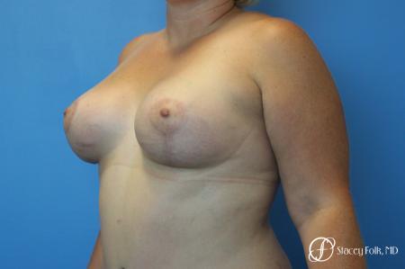 Denver Breast Augmentation Mastopexy 8507 -  After Image 2