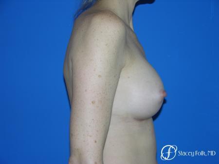 Denver Breast Augmentation 3633 -  After Image 3