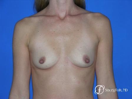 Denver Breast Augmentation 26 - Before Image 1