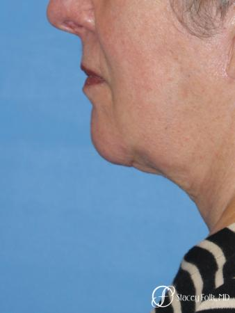 Denver Facial Rejuvenation Face and Neck Lift with Fat Transfer to the Face 9133 - After Image