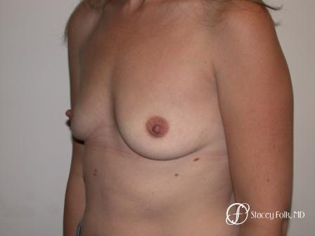Denver Breast Augmentation 27 - Before and After Image 2