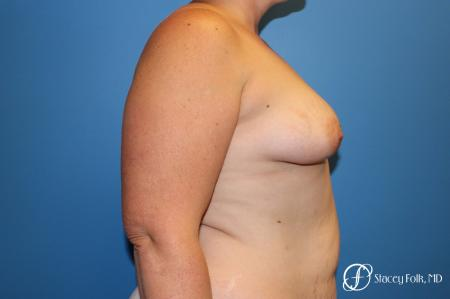 Denver Breast Augmentation Mastopexy 8507 - Before and After Image 5