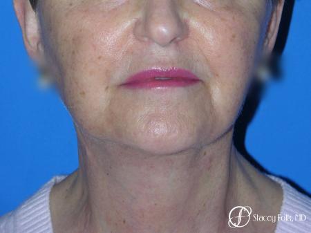 Denver Facial Rejuvenation Face Lift and Fat Injections 7130 -  After Image 2