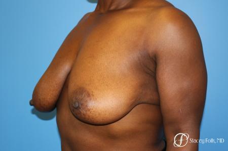 Denver Breast Lift - Mastopexy 7509 - Before Image 4