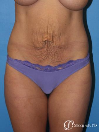 Denver Tummy Tuck - Abdominoplasty 8299 - Before Image 1