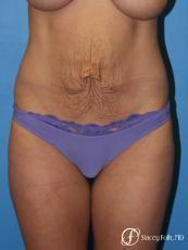Denver Tummy Tuck - Abdominoplasty 8299 - Before Image