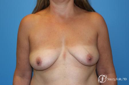 Denver Fat Transfer Breast Lift Mastopexy with Fat Transfer to the Breast 6920 - Before Image