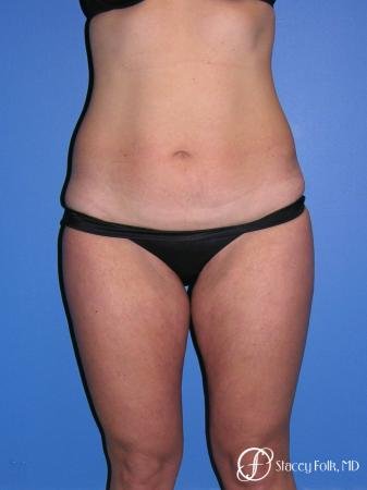Denver Tummy Tuck Abdominoplasty and liposuction 4880 - Before Image 1