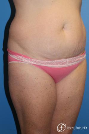 Denver Tummy Tuck 4817 - Before Image 2