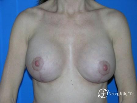 Denver Breast Revision 51 - After Image