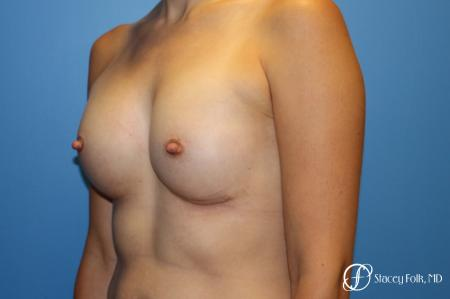 Denver Breast augmentation using textured anatomical implants 5849 -  After Image 2
