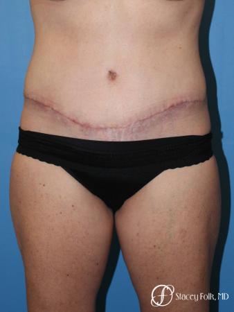 Denver Tummy Tuck 4817 -  After Image 1