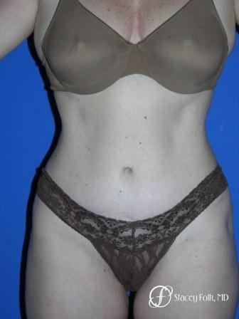 Denver Tummy Tuck 44 - After Image