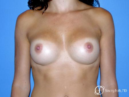 Denver Breast Augmentation 9136 - After Image