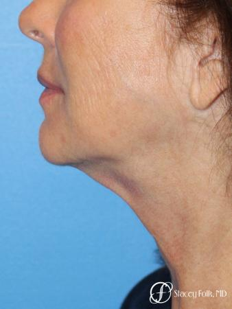 Denver Facelift & Laser Resurfacing 8277 - Before Image