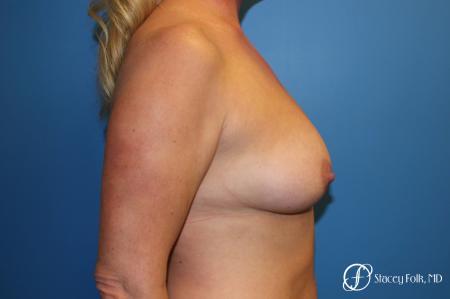 Denver Breast Lift 10252 - Before Image 3