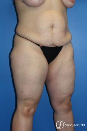Tummy Tuck (Abdominoplasty) - Before Image 2