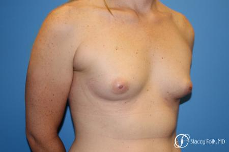 Denver Male to female top surgery with Sientra anatomic textured classic implants 5256 - Before and After Image 3
