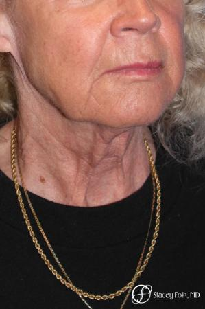 Denver Facial Rejuvenation Face lift, Fat Injections, and Laser Resurfacing 7131 - Before and After Image 4