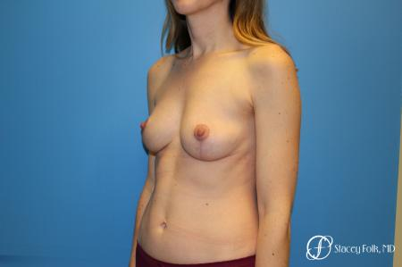 Fat Transfer Breast Lift: Patient 1 - After Image 3