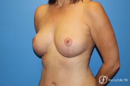 Denver Fat Transfer Breast Lift Mastopexy with Fat Transfer to the Breast 6916 -  After Image 2
