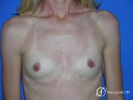 Denver Breast Augmentation 8 - Before Image 1