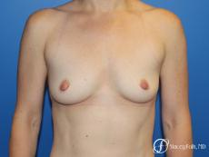 Breast augmentation with Natrelle Inspira breast implants - Before Image