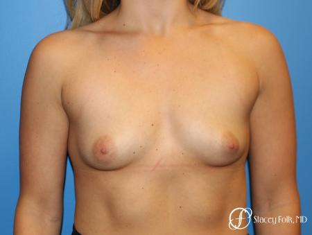Denver Breast Augmentation with textured Sientra Anatomic Implants 9126 - Before Image 1