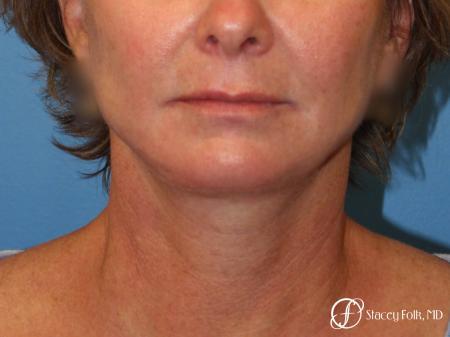 Denver Facial Rejuvenation Face Lift 7121 -  After Image 3
